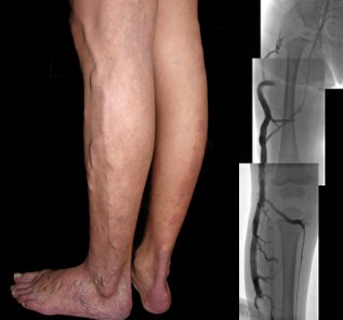 Klippel Tr 233 Naunay Syndrome Josef Pflug Vascular Laboratory
