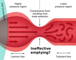 Popliteal vein compression