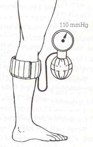 Tensiometer cuff
