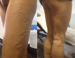 Negative veins