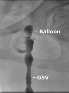 CGFS with baloon occlusion