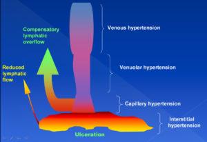 Pathogenesis venous ulcer