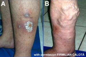 Variceal ulcers