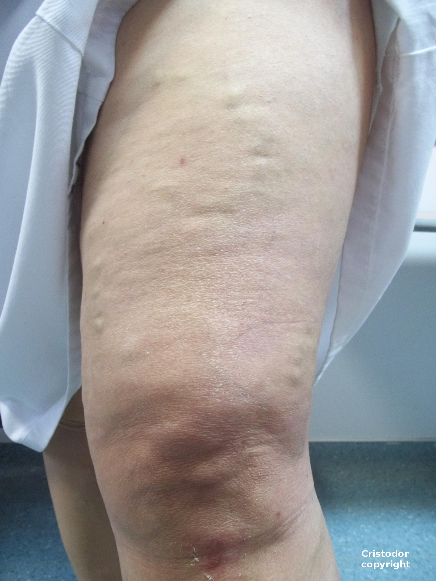 Kinesiotape In Foam Sclerotherapy Josef Pflug Vascular